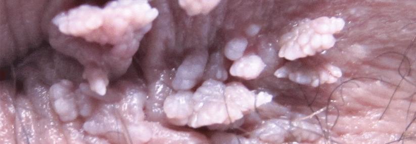Papilloma warzen, Hpv infektion warzen, Hpv warzen behandlung