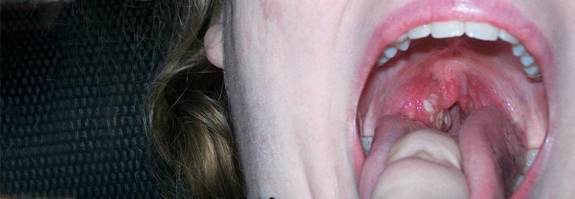 Einseitige Halsschmerzen