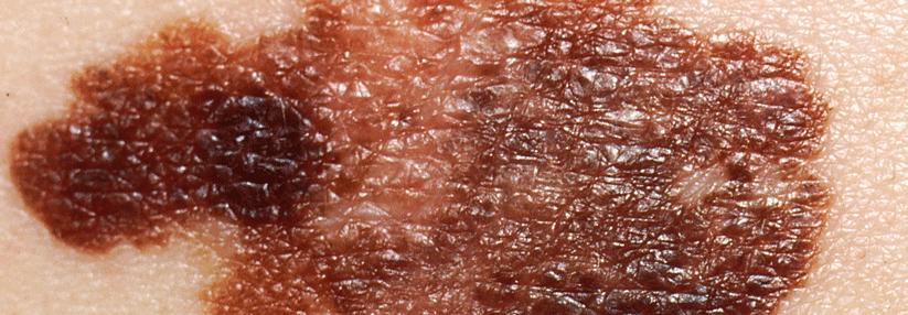 Schwarzer Hautkrebs Tägliche Ass Einnahme Erhöht Das Risiko Bei