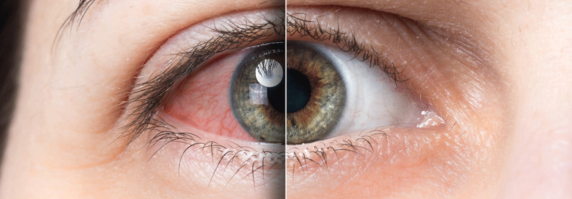 verschiedene Farben bieten viel Entdecken Sie die neuesten Trends Trockene Augen: Oft helfen schon Tränenersatzmittel ...