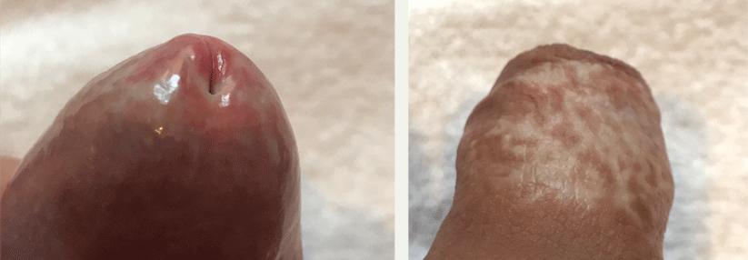 Beschneidung frenulum Circumcision