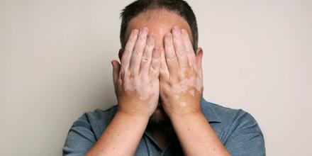 Vitiligo: Haut und Seele behandeln - Medical Tribune