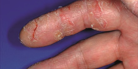 So behandeln Sie die Hand-Mund-Fu-Krankheit bei Ihrem