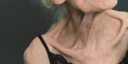 Gewichte stemmen gegen Tumorkachexie? - Medical Tribune