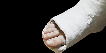 Gips thrombose fuß Thrombosespritze vergessen