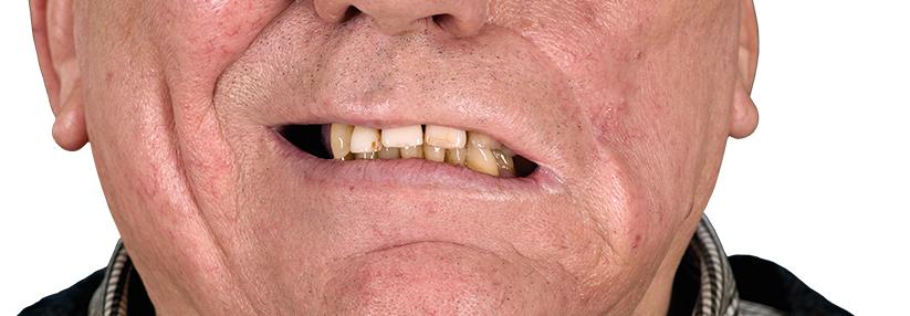 Mann herpes Herpes Symptoms